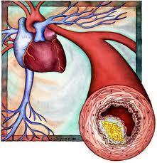 blokada arterii