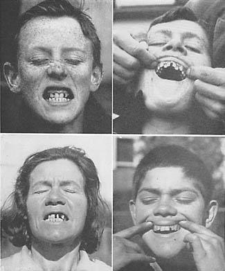 niezdrowe zęby