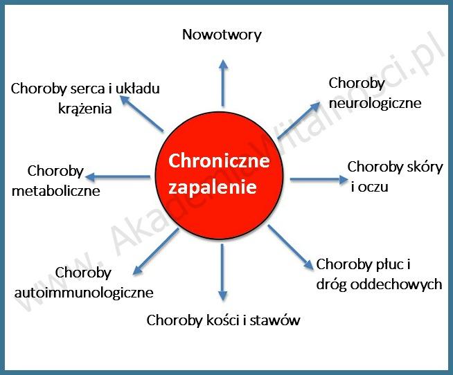 chroniczne zapalenie