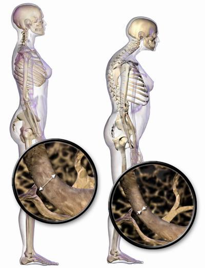 kości zdrowe i niezdrowe